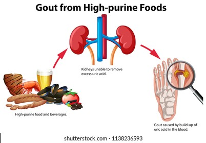 Gout from High-purine Foods illustration