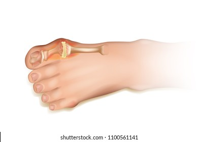 Gout.  Human foot illustration