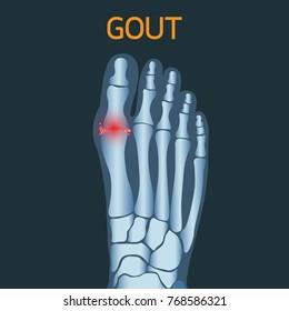 Gout vector logo icon illustration