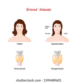 Graves disease. toxic diffuse goiter. autoimmune disease that affects the thyroid gland. Two Faces of adult females. Healthy woman and face with  labeled symptoms of hyperthyroidism