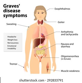 Graves' disease or toxic diffuse goiter or Flajani-Basedow-Graves disease. Symptoms and signs of Graves' disease. Human silhouette with highlighted internal organs