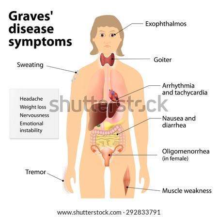 graves disease toxic diffuse goiter flajani basedow graves の