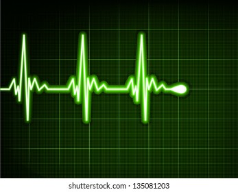 Green heart beat. Ekg graph. EPS 8 vector file included