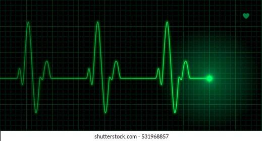 Green heart pulse illustration on black background, electrocardiogram