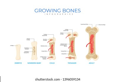 Growing Bones Medical Infographic Chart Composition Poster Illustration, Suitable For Education, Presentation, Print and Other Related Occasion