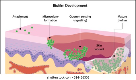 Growth of a bacterial biofilm on a skin wound, from initial attachment through microcolony formation, signalling and mature biofilm