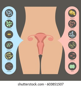 Gynecology Vector illustration. Womans vaginal flora or microbiota in vagina, Good and Bad Bacteria