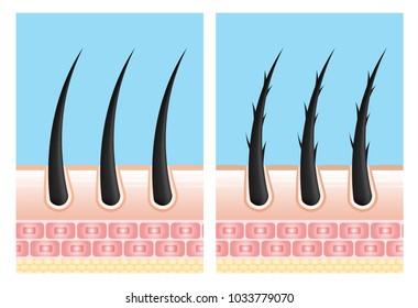 Hair care serum follicle diagnostics. Anatomy skin, medical human, epidermis layer, vector illustration design.