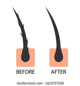 Hair care serum follicle diagnostics before and after treatment. Anatomy skin, medical human, epidermis layer, vector illustration design.