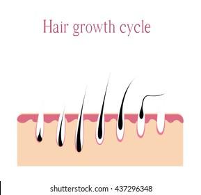 hair growth cycle. Hair loss. androgenetic Alopecia. Vector illustration