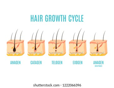 Hair growth cycle medical educational poster. Skin cross-section showing a hair follicle in anagen, telogen and catagen phases. Removal, treatment and transplantation concept. Vector illustration.