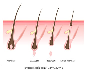 Hair growth phase, anagen, catagen, telogen, early anagen, vector illustration