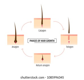 hair growth phases. Infographics trichology and dermatology. Laser Hair Removal