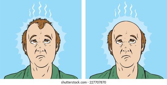 Hair loss cartoon