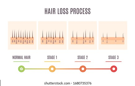 Hair loss process infographic of scalp close up with receding hair follicles. Skin cross-section medical diagnostics diagram. Alopecia treatment and transplantation concept. Vector illustration.