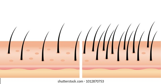 Hair loss stages set of before and after steps. Side view of a man losing hair before and after hair treatment and transplantation. number of hair on scalp before and after of treatment loss.