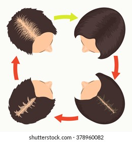 Hair loss stages set. Top view portrait of a woman before and after hair treatment and transplantation. Female pattern baldness. Isolated vector illustration.