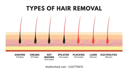 Hair removal concept. Shaving, depilation cream, waxing, epilator, plucking, laser hair removal and electrolysis. Comparison of different types of hair removal. Vector