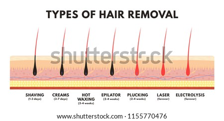 hair removal concept shaving depilation cream stock vector (royaltyhair removal concept shaving, depilation cream, waxing, epilator, plucking, laser hair removal and electrolysis comparison of different types of hair