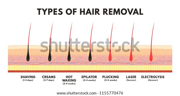 Hair Removal Concept Shaving Depilation Cream Stock Vector