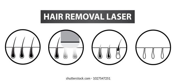 Ingrown Hair Images  Stock Photos  U0026 Vectors