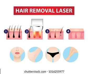 Hair removal laser step vector illustration