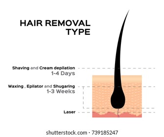 hair removal type vector ( shaving cream depilation waxing epilator shugaring and laser )