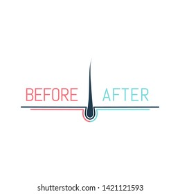 Hair transplant logo with a follicle icon for medical diagnostic centers and clinics. Before and after concept. Alopecia and baldness treatment outcome.