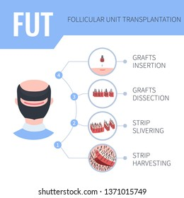 Hair transplantation alopecia treatment by FUT in men. 4 steps infographics. Stages of follicular unit transplantation restoration surgery for male patients. Vector template for clinics.