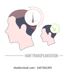 Hair transplantation procedure. Hair loss medical treatment of a female patient with alopecia. Faceless woman, no identity concept. Before and after concept. Vector linear illustration.