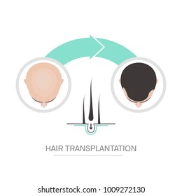 Hair transplantation surgery 2 steps infographics. Patient before and after the procedure. Male hair loss treatment with FUT, FUE method. Alopecia medical design for clinics and diagnostic centers.