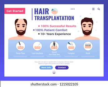 Hair transplantation web banner with infographics advertising and interface elements on white background vector illustration