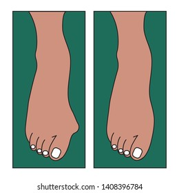 Hallux valgus, bone growth on foot, foot deformation, pain. Vector flat illustration