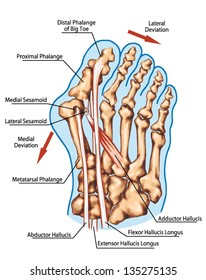 hallux valgus  - pathogenic mechanism, lateral deviation of the first ray with subluxation of the metatarsophalangeal joint