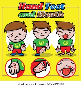 Hand Foot and Mouth disease handdraw vector cartoon. It's spreading on little children under 10 years old.