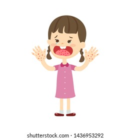 Hand Foot and Mouth  Disease Thomson Medical