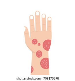 Hand with psoriasis or Eczema. Vector illustration.