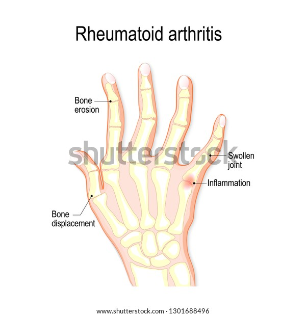 hand with rheumatoid arthritis and typical joint swelling and deformation  of the fingers and knuckles