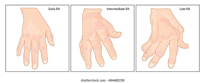 A hand showing early, intermediate and late rheumatoid arthritis with typical joint swelling and deformation of the fingers and knuckles