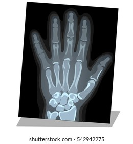 X Ray Drawing Images Stock Photos Vectors Shutterstock
