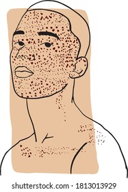 Hand-draw outline portrait of a young man with his face cover by freckles and dark beige sample color. Abstract colletion of different people and skin tones. Diversity concept