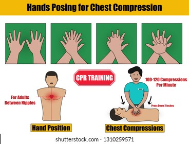 Hands Posing for Chest Compressions Step in CPR Emergency Rescue Process Training on Adult Human Manikin - Info Graphic Flat Design
