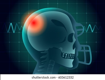Head of American football athlete have a red signal on physical monitor background. Illustration about medical diagnosis.