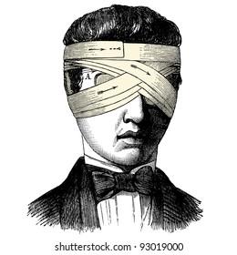 """Head bandage - vintage engraved illustration - """"Manuel des hospitalière et des garde-malaldes""""  edited by  Librairie Poussielgue - Paris 1907"""