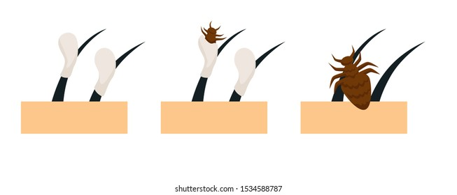 Head lice lifecycle with eggs attached on hair shaft, louse hatching and moult occurring process shown, scalp hygiene, infectious disease common in children, health themed concept illustration
