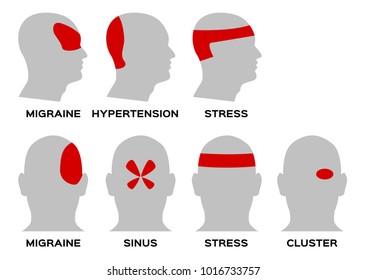 headache type vector / organ and anatomy concept