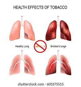 Health effects of smoking. Healthy lungs and smokers lungs. No smoking sign. symbol flat icon