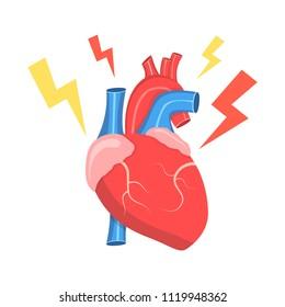 Congenital Heart Disease Images, Stock Photos & Vectors ...