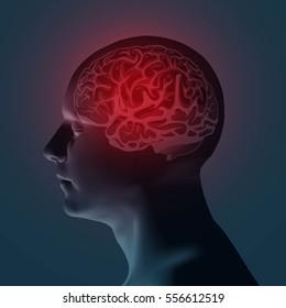 Healthcare and migraine concept - vector illustration