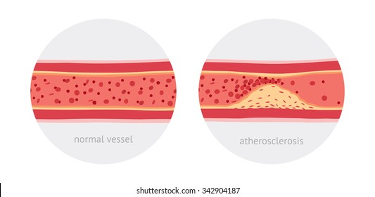 Healthy and atherosclerosis vessels with blood cells vector illustration